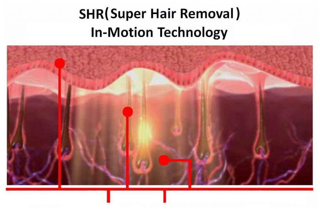 فناوری SHR برای رفع موهای زائد چگونه عمل میکند؟